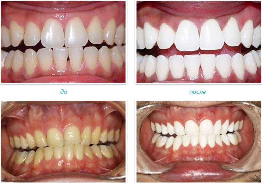 Отбеливание зубов по технологии Zoom 3. ZOOM (Discus Dental, США)
